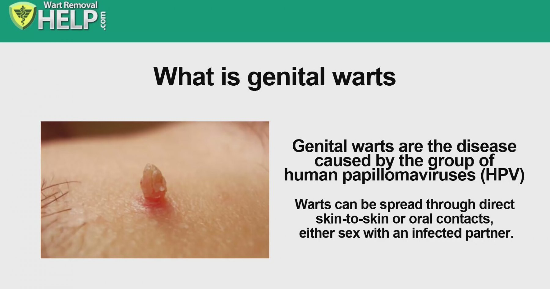 Anal wart removal