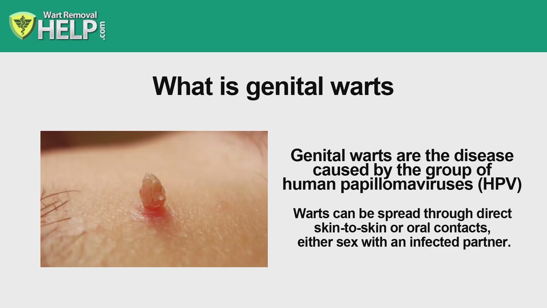 Wart Removal Get Rid Of Genital Warts Naturally Fast And Forever