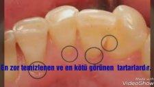 Tartar Temizleme ve Diş Beyazlatmada En Etkili Yöntem